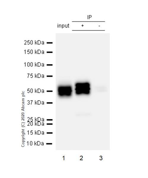 Immunoprecipitation - Anti-Cytokeratin 8 (phospho S431) antibody [EP1630] (ab109452)