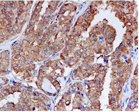 Immunohistochemistry (Formalin/PFA-fixed paraffin-embedded sections) - Anti-Peroxiredoxin 1/PAG antibody [EPR5433] (ab109498)