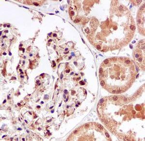 Immunohistochemistry (Formalin/PFA-fixed paraffin-embedded sections) - Anti-IKB beta antibody [EPR5037] (ab109509)