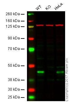 Western blot - Anti-IKB beta antibody [EPR5037] (ab109509)