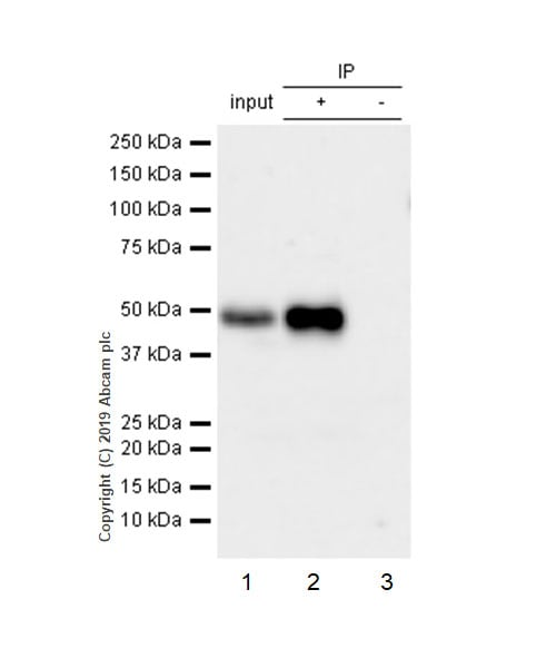 Immunoprecipitation - Anti-IKB beta antibody [EPR5037] (ab109509)