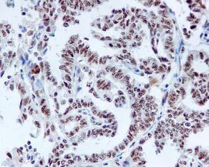 Immunohistochemistry (Formalin/PFA-fixed paraffin-embedded sections) - Anti-DDX50 antibody [EPR5273] (ab109515)