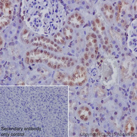 Immunohistochemistry (Formalin/PFA-fixed paraffin-embedded sections) - Anti-Galectin 8/Gal-8 antibody [EPR4857] (ab109519)