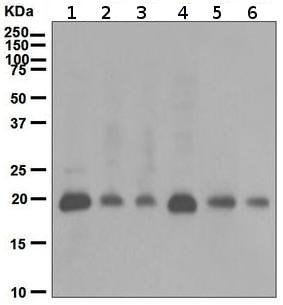 Western blot - Anti-p21 antibody [EPR362] (ab109520)