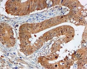 Immunohistochemistry (Formalin/PFA-fixed paraffin-embedded sections) - Anti-NOXA2/p67phox antibody [EPR5065] (ab109523)
