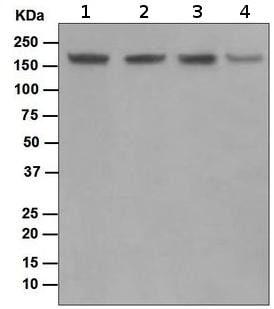 Western blot - Anti-Topoisomerase II alpha + Topoisomerase II beta antibody [EPR5377] (ab109524)