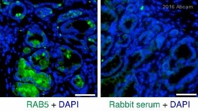 Immunohistochemistry (Formalin/PFA-fixed paraffin-embedded sections) - Anti-Rab5 antibody [EPR5438] - Early Endosome Marker (ab109534)