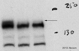 Western blot - Anti-WAPL/FOE antibody [EPR3407(2)] (ab109537)