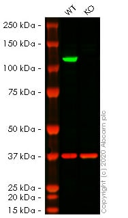 Western blot - Anti-Insulin degrading enzyme / IDE antibody [EPR6099] (ab109538)