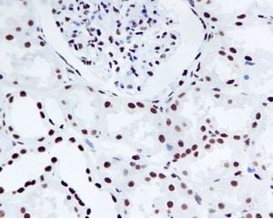 Immunohistochemistry (Formalin/PFA-fixed paraffin-embedded sections) - Anti-Nucleophosmin (phospho S125) antibody [EPR1856] (ab109546)