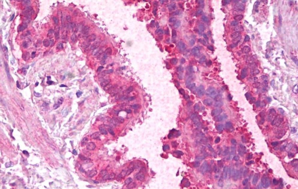 Immunohistochemistry (Formalin/PFA-fixed paraffin-embedded sections) - Anti-PCBP1 antibody (ab109577)