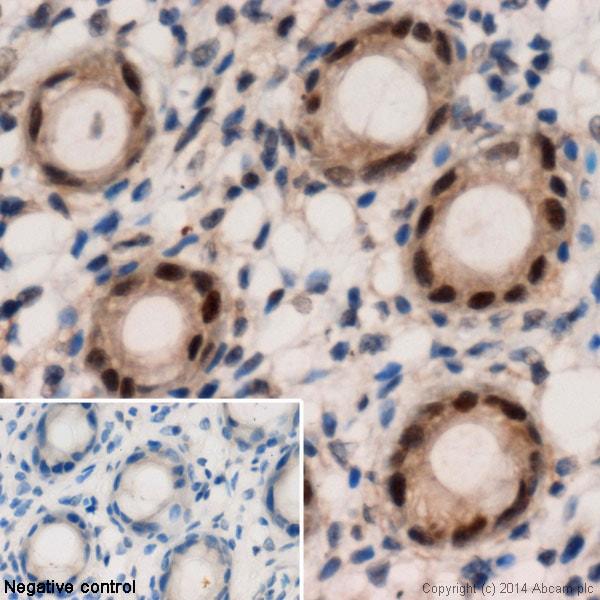 Immunohistochemistry (Formalin/PFA-fixed paraffin-embedded sections) - Anti-HIF-2-alpha antibody (ab109616)