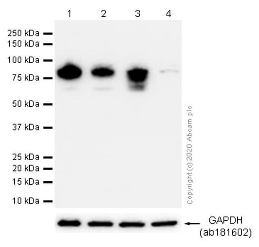 Western blot - Anti-GOLPH2 antibody [EPR3606] (ab109628)