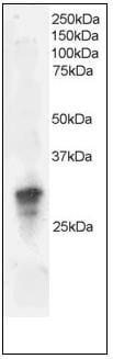Western blot - Anti-GRB2 antibody (ab109651)