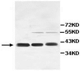 Western blot - Anti-IL-11RA antibody (ab109697)