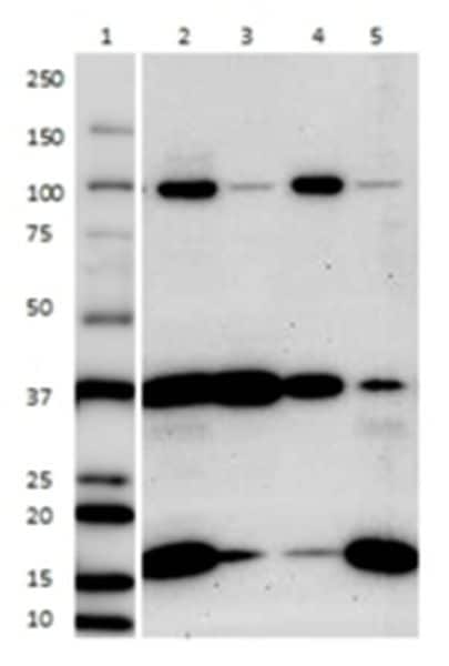 Analysis of fractions by Western blot with a plasma membrane antibody cocktail.
