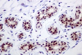 Immunohistochemistry (Formalin/PFA-fixed paraffin-embedded sections) - Anti-IKK alpha antibody [EPR464] (ab109749)