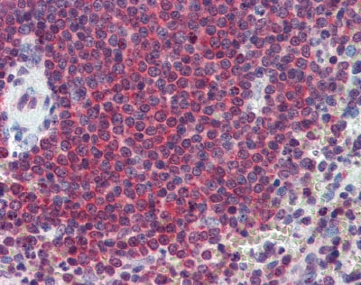 Immunohistochemistry (Formalin/PFA-fixed paraffin-embedded sections) - Anti-Carbonic Anhydrase 1/CA1 antibody (ab109755)