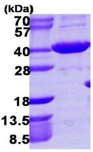 SDS-PAGE - Recombinant human AKR1C4 protein (ab109831)