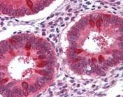 Immunohistochemistry (Formalin/PFA-fixed paraffin-embedded sections) - Anti-Reptin/TIP49B/RUVB2 antibody (ab109872)