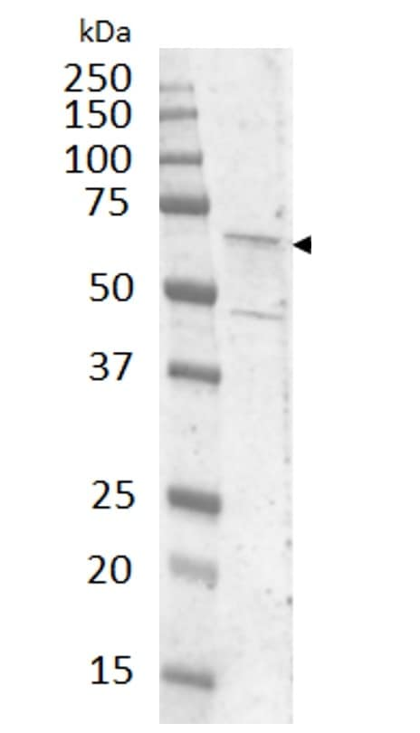 Western blot - Anti-Calcitonin receptor/CT-R antibody (ab11042)