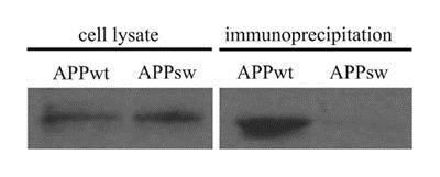 Western blot - Anti-beta Amyloid antibody [DE2B4] (ab11132)