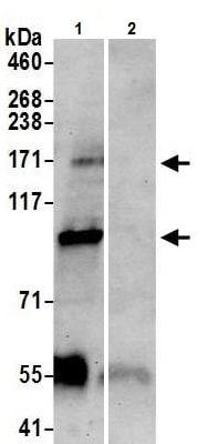 Immunoprecipitation - Anti-TRPM2 antibody (ab11168)