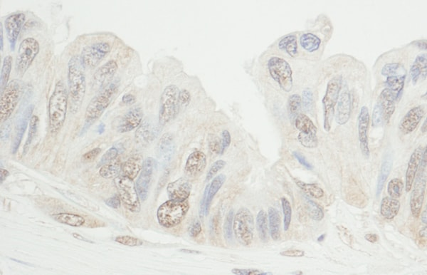Immunohistochemistry (Formalin/PFA-fixed paraffin-embedded sections) - Anti-MDC1 antibody (ab11170)