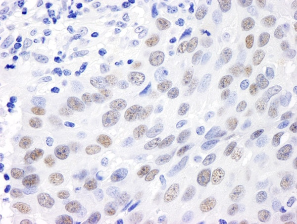 Immunohistochemistry (Formalin/PFA-fixed paraffin-embedded sections) - Anti-MDC1 antibody (ab11171)