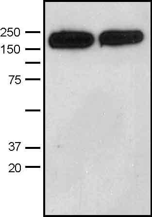 Western blot - Anti-DIAPH1 antibody (ab11173)