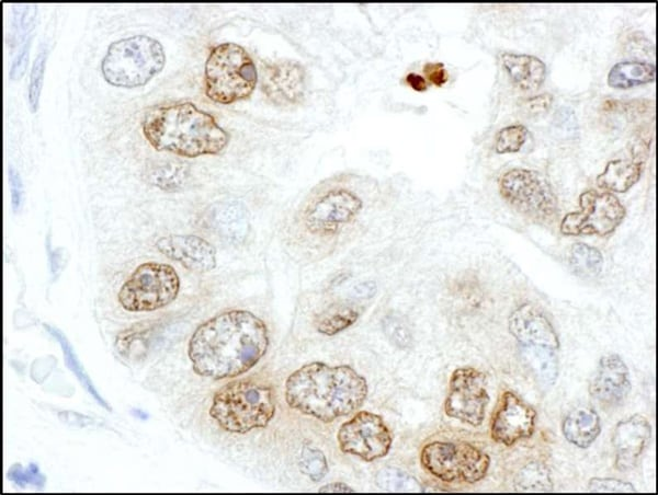 Immunohistochemistry (Formalin/PFA-fixed paraffin-embedded sections) - Anti-gamma H2A.X (phospho S139) antibody (ab11174)