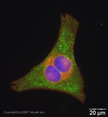 Immunocytochemistry/ Immunofluorescence - Anti-PARK7/DJ1 antibody [malphaDJ-1/E2.19] (ab11251)