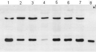 Western blot - Anti-PARK7/DJ1 antibody [malphaDJ-1/E2.19] (ab11251)