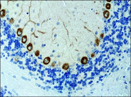 Immunohistochemistry (Formalin/PFA-fixed paraffin-embedded sections) - Anti-KIF3A antibody (ab11259)