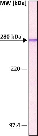 Western blot - Anti-MAP2 antibody [HM-2] (ab11267)