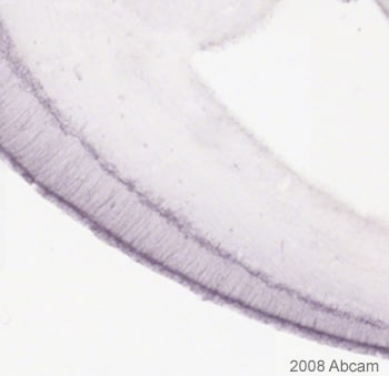 Immunohistochemistry (Formalin/PFA-fixed paraffin-embedded sections) - Anti-MAP2 antibody [AP-20] (ab11268)