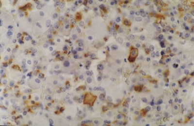 Immunohistochemistry (Formalin/PFA-fixed paraffin-embedded sections) - Anti-Prolactin/PRL antibody [INN-hPRL-1] (ab11301)