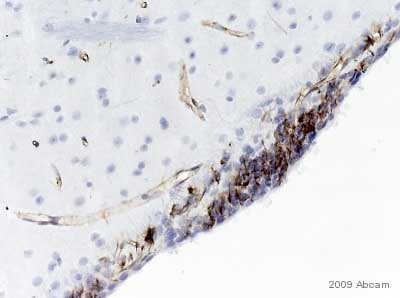 Immunohistochemistry (Formalin/PFA-fixed paraffin-embedded sections) - Anti-Nestin antibody [Rat-401] - Neural Stem Cell Marker (ab11306)