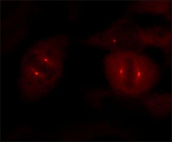 Immunocytochemistry - Anti-gamma Tubulin antibody [GTU-88] - Centrosome Marker (ab11316)