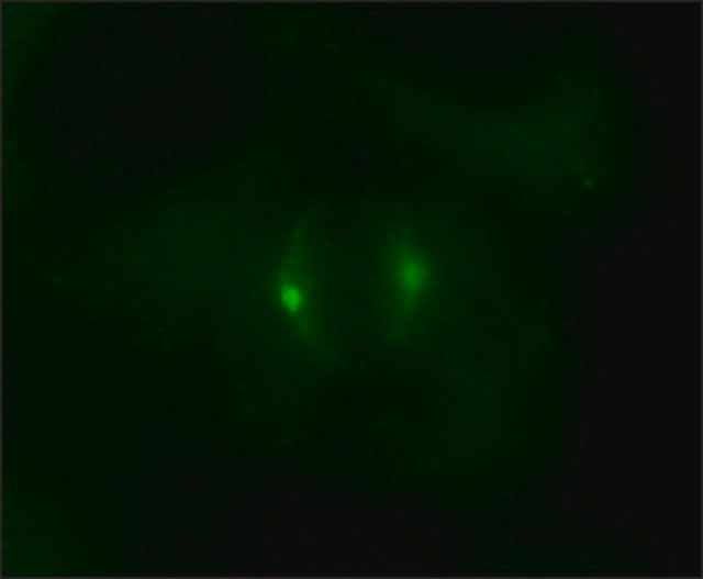 Immunocytochemistry - Anti-gamma Tubulin antibody (ab11321)