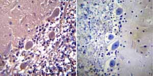 Immunohistochemistry (Formalin/PFA-fixed paraffin-embedded sections) - Anti-Parvalbumin antibody (ab11427)