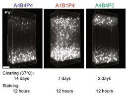 Immunohistochemistry - Anti-Parvalbumin antibody (ab11427)