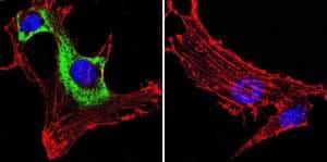 Immunocytochemistry/ Immunofluorescence - Anti-VCP antibody [5] (ab11433)