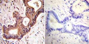 Immunohistochemistry (Formalin/PFA-fixed paraffin-embedded sections) - Anti-VCP antibody [5] (ab11433)