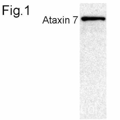 Western blot - Anti-Ataxin 7 antibody (ab11434)