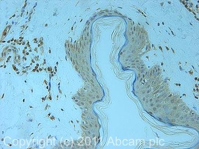 Immunohistochemistry (Formalin/PFA-fixed paraffin-embedded sections) - Anti-PSMD7/Mov34 antibody (ab11436)