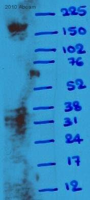 Western blot - Anti-alpha 1 Spectrin antibody [17C7] (ab11751)
