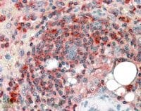 Immunohistochemistry (Formalin/PFA-fixed paraffin-embedded sections) - Anti-ARPC2 antibody (ab11798)