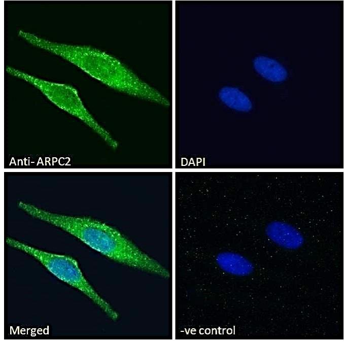Immunocytochemistry/ Immunofluorescence - Anti-ARPC2 antibody (ab11798)