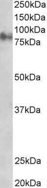 Western blot - Anti-gamma Catenin antibody (ab11799)